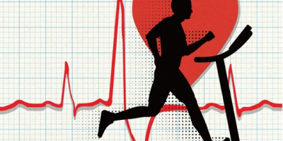 Cardiac Rehabilitation